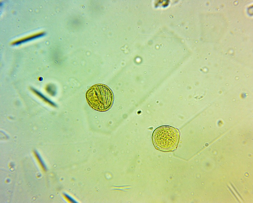 Suspected pollen grains in unfiltered wildflower honey